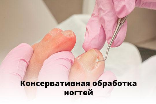 Консервативная-обработка-ногтей